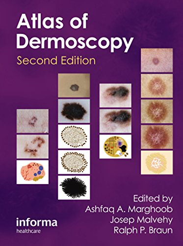 An Atlas of Dermoscopy, Second Edition Pdf