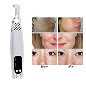 Spot Removal Picosecond Pen,Tattoo Scar Mole Freckle Removal Dark Spot Remover Beauty Blue Light