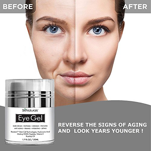 Eye Gel for Dark Circles, Puffiness, Wrinkles, Fine Lines and Bags - The Most Effective Anti-Aging Eye Cream for Under and Around Eyes with Hyaluronic Acid and Rosehip Oil - 1.7 fl. oz by SkiNaturals (Image #3)