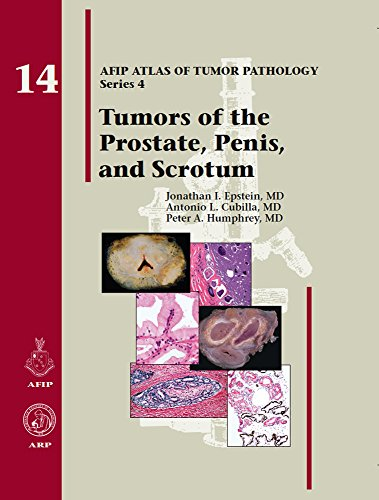 Tumors of the Prostate Gland, Seminal Vesicles, Penis, and Scrotum (AFIP Atlas of Tumor Pathology: Series 4) (Gland Prostate)