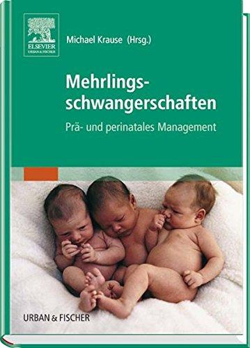 Mehrlingsschwangerschaften: Prä- und perinatales Management