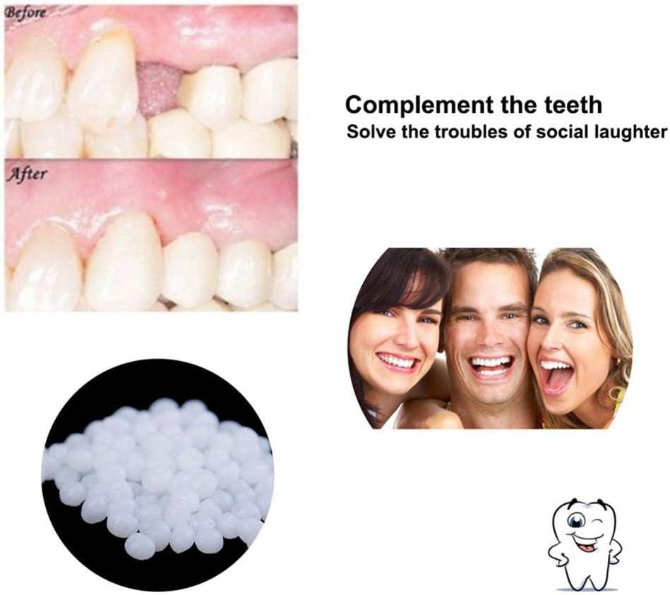 10 g//100 g Zahnreparatur-Set