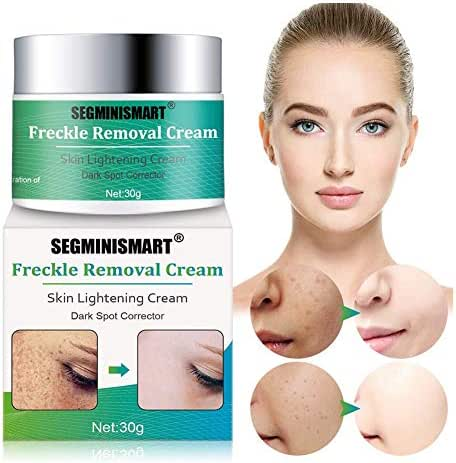 Freckle Cream,Dark Spot Corrector,Skin Lightening Cream,Freckle Remover,Bleaching Cream Freckle Removal Cream for Face and Body Hyperpigmentation Age Spot Freckles Melasma