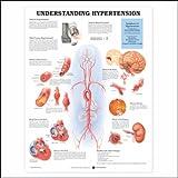 Understanding Hypertension Anatomical Chart, Anatomical Chart Company Staff, 1587794225