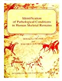 img - for Identification of Pathological Conditions in Human Skeletal Remains [Loose Leaf Edition] book / textbook / text book