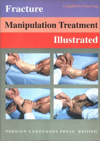 Fracture Manipulation Treatment Illustrated