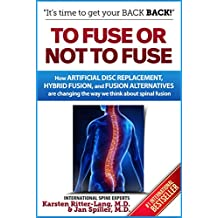 To Fuse or Not to Fuse: How Artificial Disc Replacement, Hybrid Fusion, and Fusion Alternatives are Changing the World of Spinal Fusion
