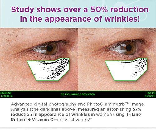 Brighter Skin with Zero Irritation