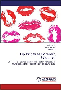 Book Lip Prints as Forensic Evidence: Cheiloscopic Comparison of the Tibetan Refugees in Mundgod and the Population of Belgaum, India