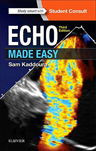 Echo Made Easy by Elsevier