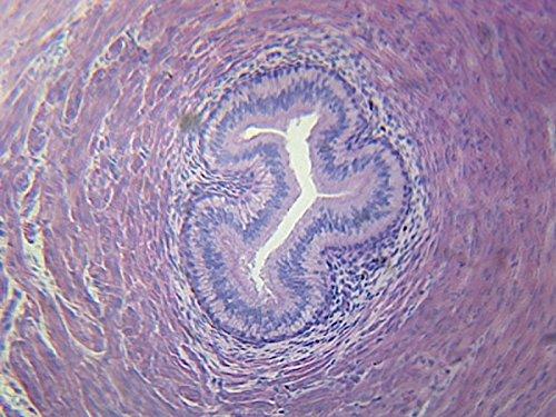 (Mammal, Excretory System, Ureter - Microscope)