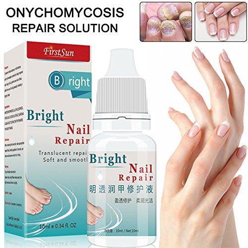 Alftek 10ml Nail Fungal Treatment Anti Fungus Onychomycosis Removal Toenail Care Nails Repair Liquid