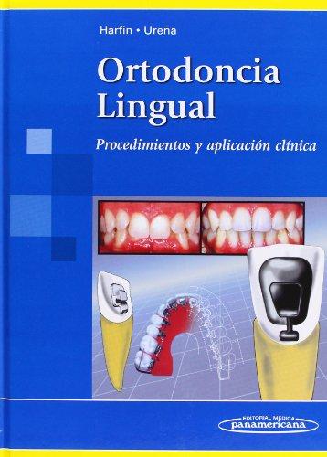 Descargar Libro Ortodoncia Lingual: Procedimientos Y Aplicación Clínica Ureña Rodríguez Harfin