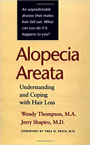 Alopecia Areata: Understanding and Coping with Hair Loss ...