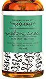 Unblemished Acne Spot Treatment by Elements of Beauty - Best Skin Care Acne Removal Treatment: Reduce Blemishes - Natural Acne Treatment - Acne Cream - Salicylic Acid, Retinol, Niacinamide