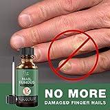 EXTRA STRONG Finger & Toenail Fungus