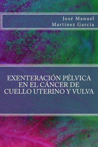 Exenteracion pelvica en el cancer de cuello uterino y vulva (Spanish Edition) [Jose Manuel Martinez Garcia] (Tapa Blanda)