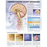Understanding Sleep Disorders Anatomical Chart