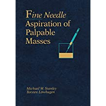 Fine Needle Aspiration of Palpable Masses