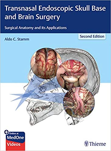 Transnasal Endoscopic Skull Base And Brain Surgery Surgical Anatomy