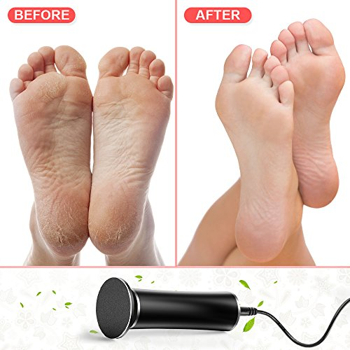 Aunote Electric Callus Remover,Professoinal Pedicure Tools Foot File(Speed Adjustable) Most Powerful Replacement Sanding Disk Best Tool Kit For Women/Men Remove Dead,Cracked Skin,Hard,Thick Callus by AUNOTE (Image #6)