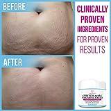 Stretch Mark Cream for Pregnancy & Scar Removal