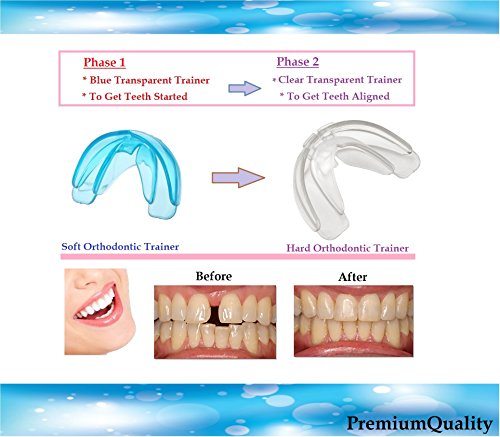 Orthodontic Teeth Trainer Kit Adult Teeth Straightener Phase 1 and Phase 2 ()