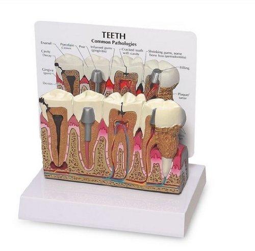 YOHOSO Diseased Teeth and Gums Model-Patient Education Dental Model