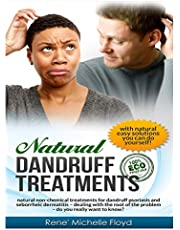 """Natural Dandruff Treatments- Natural Non-Chemical Treatments for Dandruff Psoriasis and Seborrheic Dermatitis: Natural Non-Chemical Treatments for Dandruff Psoriasis and Seborrheic Dermatitis~Dealing with the """"Root"""" of the Problem~Do You Really Want to Know?"""