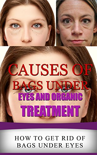 Causes For Eye Bags - 1
