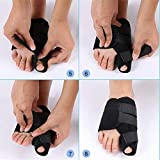 Dr.Koyama 2 Sets Rapid Bunion Pain Treatment