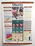 Obesity Poster