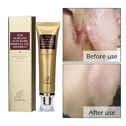 Acne Scar Removal Cream Stretch Marks Face Skin Whitening Repair Cream Shrink Pores Gel-Fade Scar Marks Acne Skin Care (30ml)