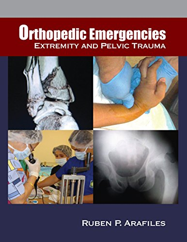 Download Orthopedic Emergencies: Extremity and Pelvic Trauma Pdf