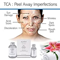 30% TCA Peel Including After Peel Neutralizer. Experienced Users Only. Strongest Facial Peel for Severe Wrinkles, Acne, Smoker's Skin. Contains Retinol & Vitamin C