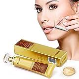 SUNNYM Acne Scar Stretch Marks Remover Cream Skin Repair Face Cream Acne Spots Acne Treatment Blackhead Whitening Cream