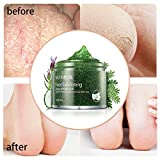 Foot Exfoliating Scrub Gel, Foot Whitening Skin Care, Foot Moisturizer, Foot Callus Remover- Softens for Thick Cracked Rough Dead Dry Heel Feet with Natural Phytoextraction Particles, 5.07 Fl.Oz