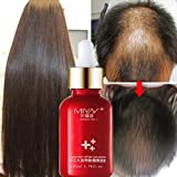 Hair Growth Essence, Exteren Hair Growth Essence Advanced Thinning...
