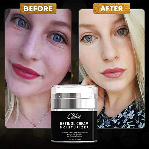 51Y0crW7%2B6L - Retinol Moisturizer for Face and Eye area   Anti Aging Cream with Hyaluronic Acid, 2.5% Active Retinol and Vitamin E   Reduces Appearance of Wrinkles and Fine lines   Best Day and Night Face Cream