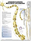 Understanding Multiple Sclerosis Paper, Anatomical Chart Company Staff, 1587799715