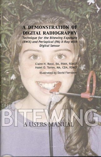 A DEMONSTRATION OF DIGITAL RADIOGRAPHY Technique for the Bitewing Exposure (BWX) and Periapical (PA) X-Ray with Digital Sensor. Subtitled THE BITEWING, A Users Manual