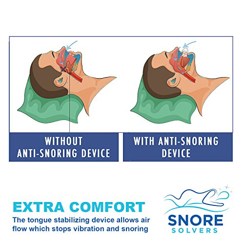 Snore Solvers Snoring Solution Tongue Retainer to Reduce or Stop Snoring Anti Snoring Device for Men and Women by Snore Solvers (Image #1)