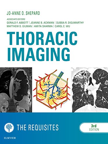 Thoracic Imaging The Requisites E-Book (Requisites in Radiology)