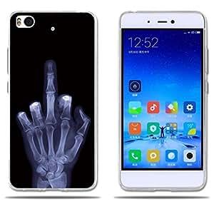 FUBAODA Funda Xiaomi Mi5S Carcasa de Silicona,Ultra Suave con Cubierta Protectora,Dibujo Tema No Toque Mi Teléfono, Amortigua los Golpes, Funda ...