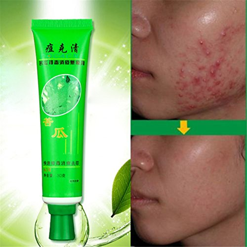 ULAKY Removal Blemish Facial Effective Acne Treatments Gel Care Face Skin Cream Pure & Clear Acne Treatment Gel