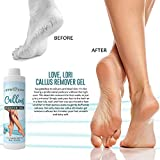 Callus Remover Gel 6 OZ For A DIY Pedicure For Soft Feet And Hands. Use With Your Favorite Pumice Stone Or Foot File For Professional