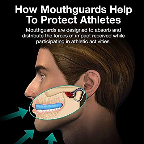 Hockey Unisex moldable Jaw protecting Gum Shield with Case MMA and all contact sports Rugby Boxing Judo HyperShields Not Just Any Mouth Guard protector Pro
