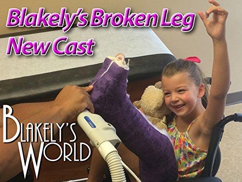 blakelys-broken-leg-new-cast