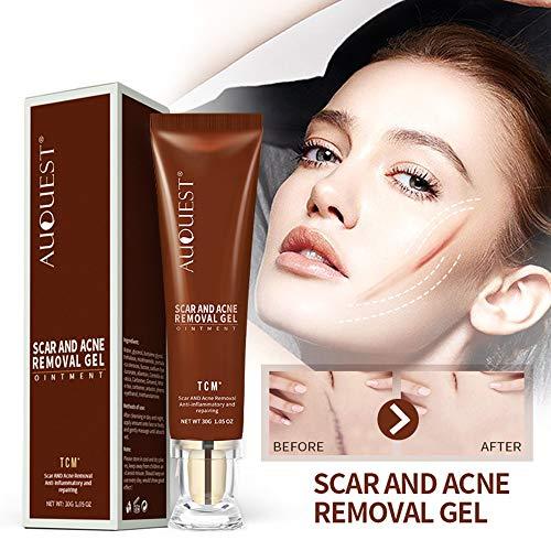 Euone  Care Cream Clearance , Removal Acne