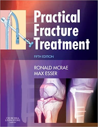 Practical Fracture Treatment, Fith Edition: Amazon co uk: Ronald